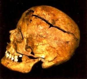 Frattura alla regione frontale e parietale sx causata da scheggia di granata